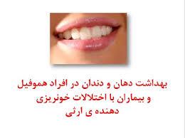 تصویر از بهداشت دهان و دندان در افراد هموفیل و بیماران با اختلالات خونریزی دهنده ی ارثی